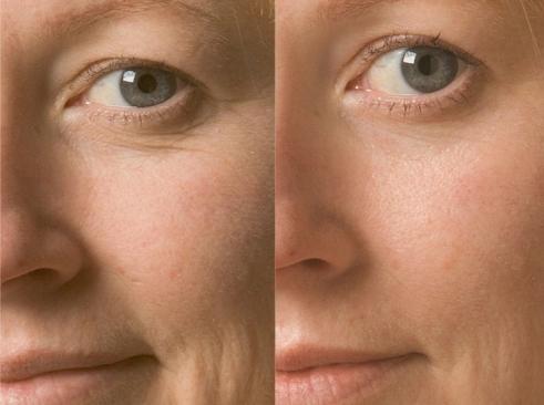 Применение оливкого масла: фото До и После